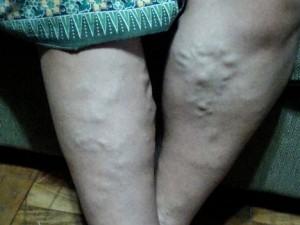 cu dureri în picioare fără varicoză